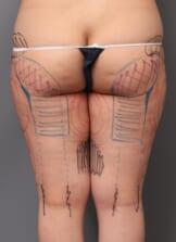 「BMI 23.8、20代女性」の『大腿内・外のベイザー脂肪吸引』