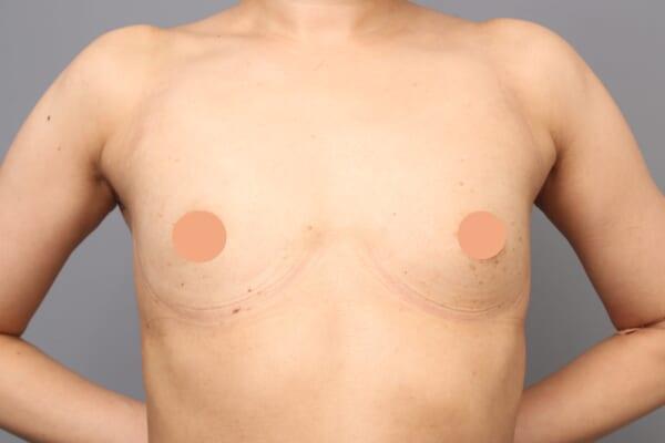 「BMI 21.9、30代女性」の『コンデンスビブラ豊胸』 ~~最強ツール、乳房拡張機器「BEbra(ビブラ)」⑥~~