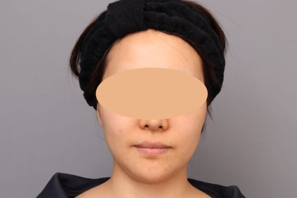 「BMI 22.3、30代女性」の『頬・アゴ下のベイザー脂肪吸引』