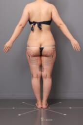 「BMI 22.8、30代女性」の『大腿内・外のベイザー脂肪吸引』~キュッとヒップアップ効果も~