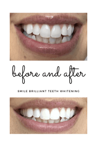 At home teeth whitening to get rid of coffee and tea stains, using Smile Brilliant custom trays. #teethwhitening #coffeestains #whiteningtrays