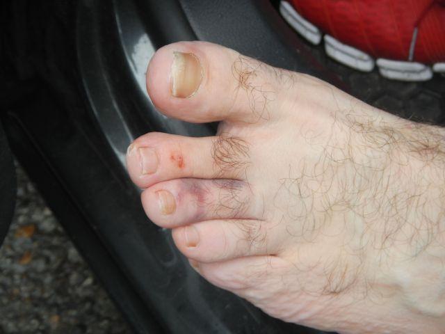 Kenin's toe incident