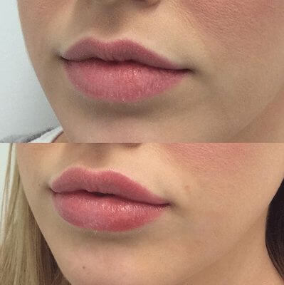 1ml lip filler | Lipmakeup co