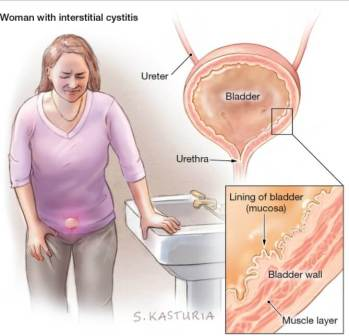 women with Painful Bladder Syndrome