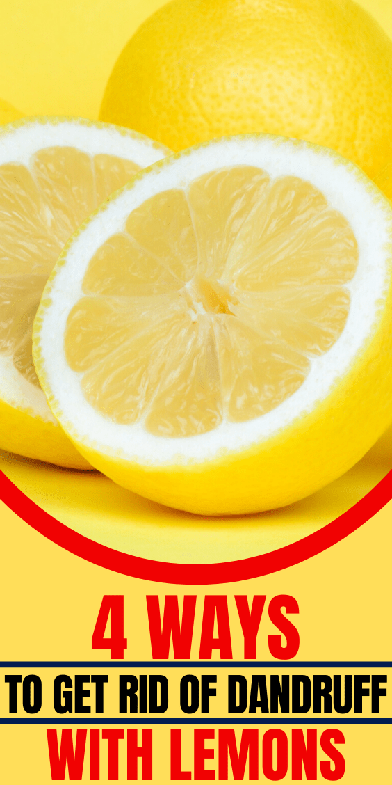 How To Get Rid Of Dandruff With Lemon