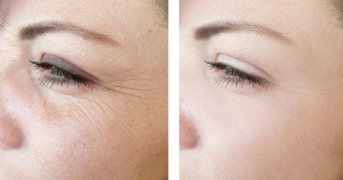 Anti-Aging Banana Face Mask for Wrinkles
