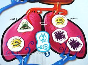 Lung 1: one green virus, one yellow virus. Lung 2: one yellow virus, two purple viruses.
