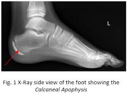 xray showing calcaneal apophysis