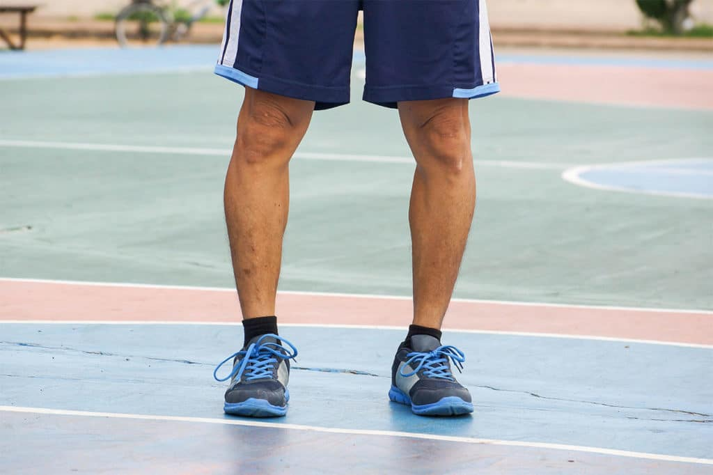 Don't Suffer with Bowlegs. We Can Help. Put Your Feet in ...