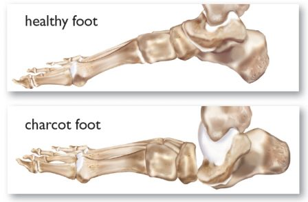 illustration showing difference between healthy foot and charcot foot