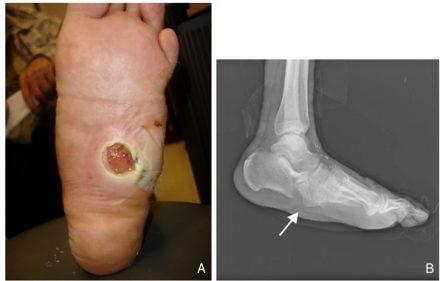 Charcot's arthropathy ulcer