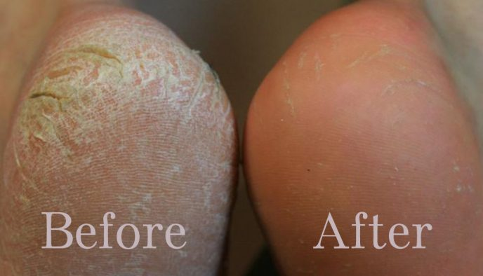 photo of before and after cracked heel treatment