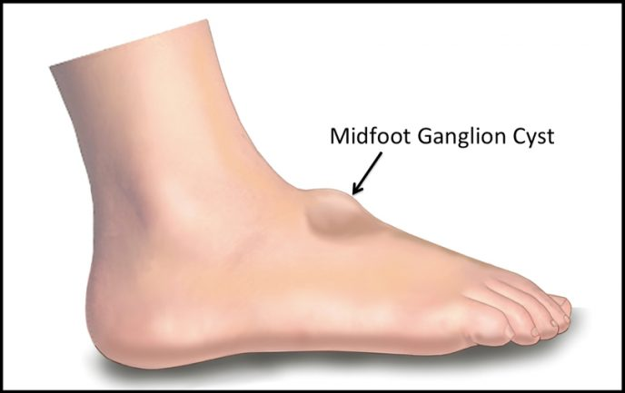 illustration of midfoot ganglion cyst
