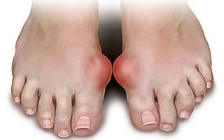 illustration of gout on two feet