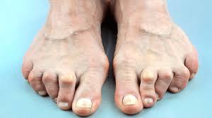 arthritis1 - Foot and Ankle Arthritis