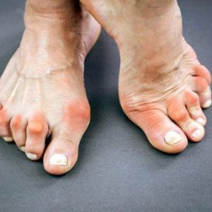 rheumatoid arthritis - Rheumatoid Arthritis
