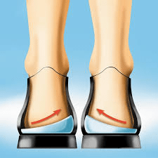 pptd7 - Posterior Tibial Tendon Dysfunction