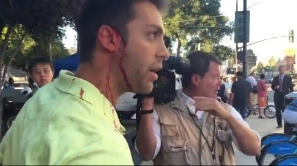 trump supporter bleeding