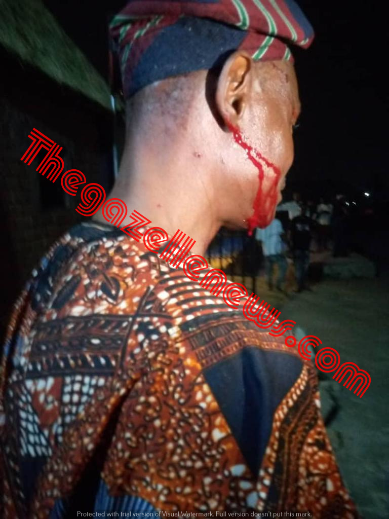 Thugs Attack Aregbesola's PA, Lawmaker, Senator's Brother, Osun Speaker's Aide In Osogbo + Exclusive Photos Of Victims