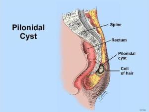 Pilonidal Cyst