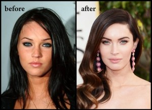 megan_fox_before_after_plastic_surgery