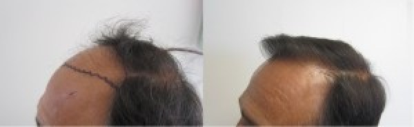 Before and After Hair Transplant Photos