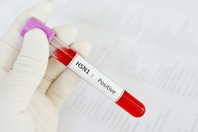H5N1 Positive