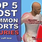 The Top 5 Most Common Sports Injuries (INFOGRAPHIC)