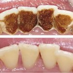 How to get rid of smoking stains on teeth: the best Practices