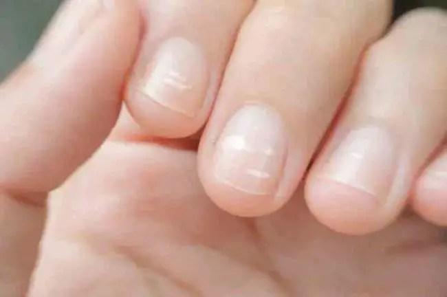 White-Spots-nails