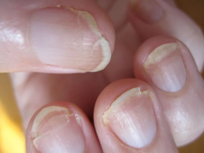 cracked-fingernail