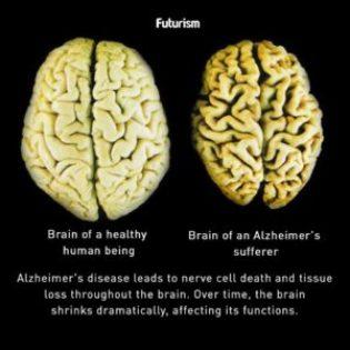 Alz Brain