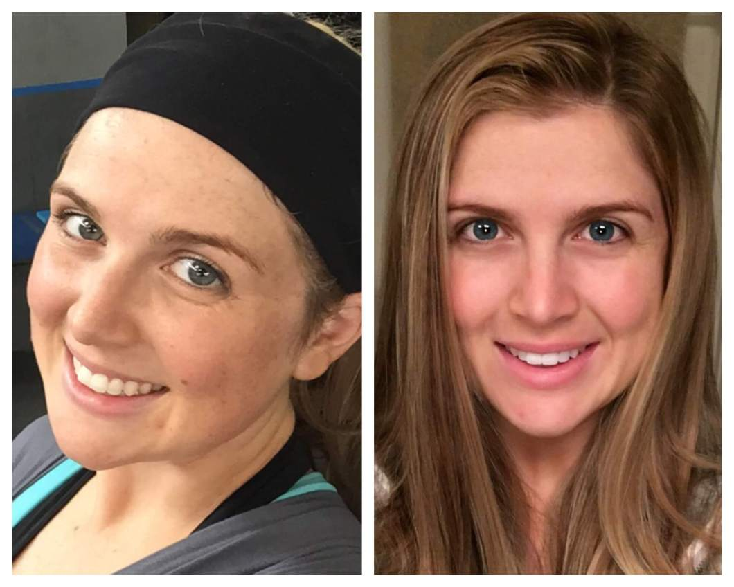 My face after 1 week of Beautycounter // I'm even wearing a little makeup on the left! // www.thehisfor.com