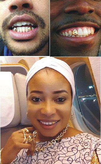 Fashionable  gold teeth