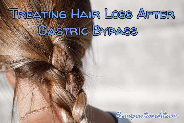 Treating hair loss after gastric bypass surgery the inspiration edit treating hair loss after gastric bypass surgery urmus Gallery