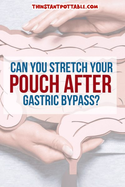 stretch pouch gastric bypass
