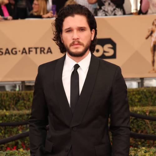 Kit Harington black eye Game of ThroneS audition