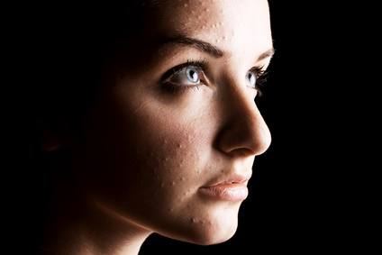 Acne: Causes, Natural Remedies, and more...