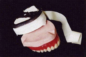 A Variation On Split Cast Mounting For Complete Denture
