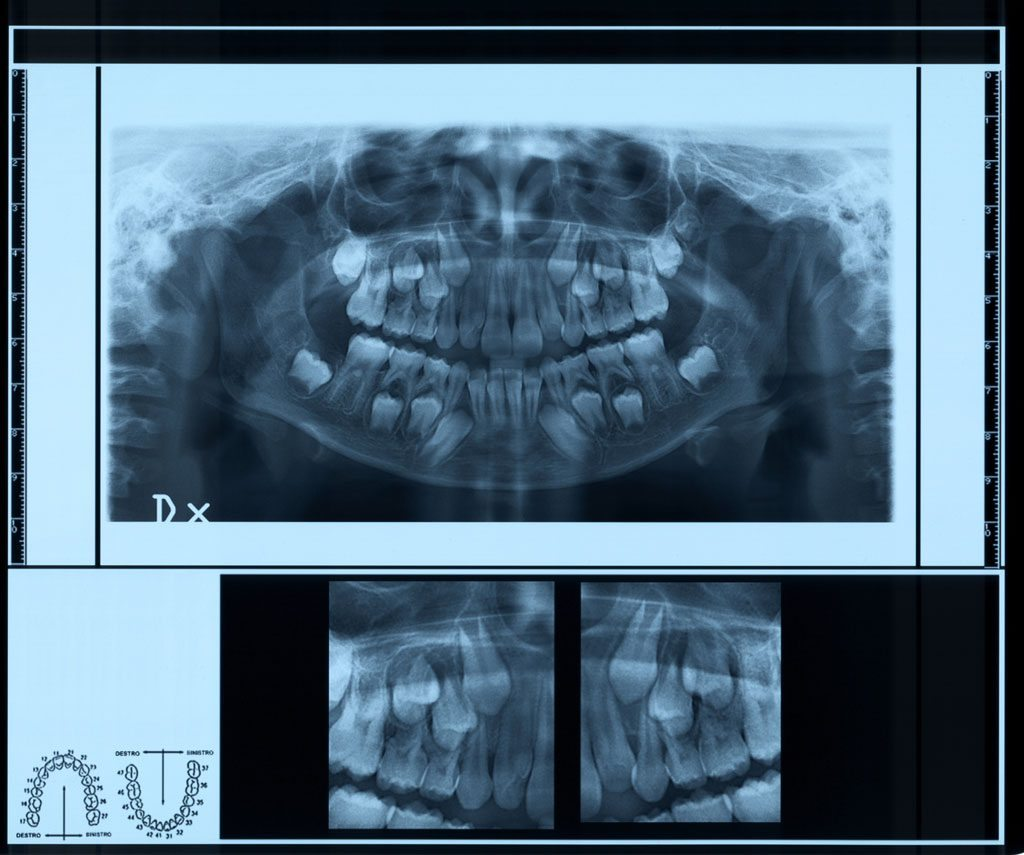 Pediatric Dental X Rays Radiography And Safety The