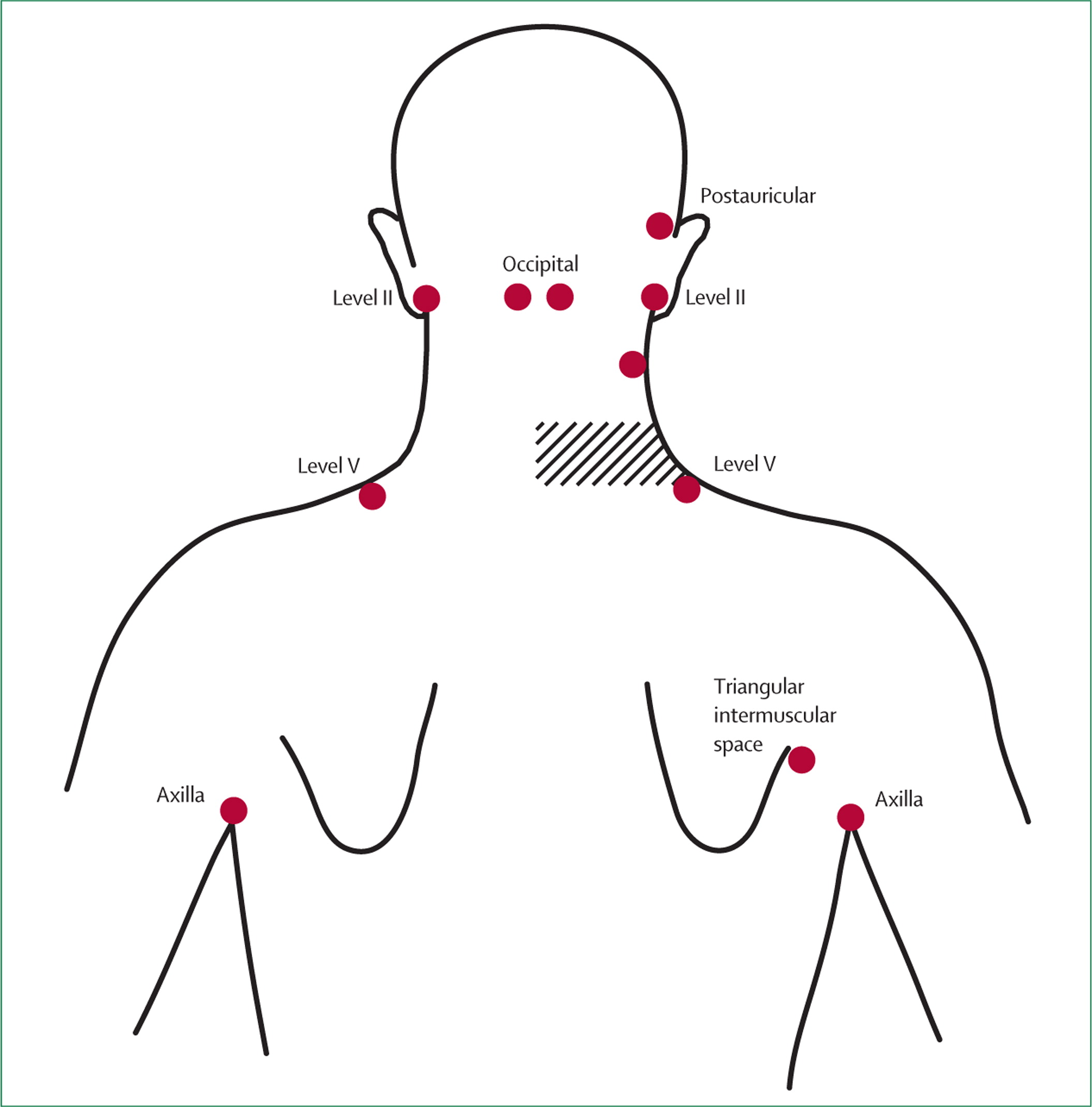 Lymphatic Mapping In Management Of Patients With Primary
