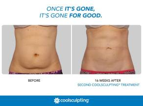 indianapolis coolsculpting before and after belly fat