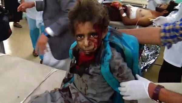 US-Backed War Risks Killing An 'Entire Generation' Of Yemeni Children