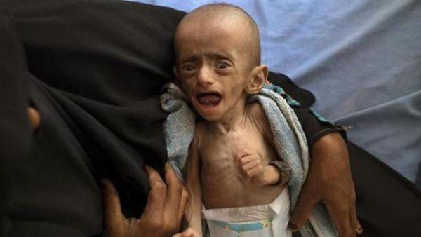 U.S. Pullout Of Yemen War Would Send