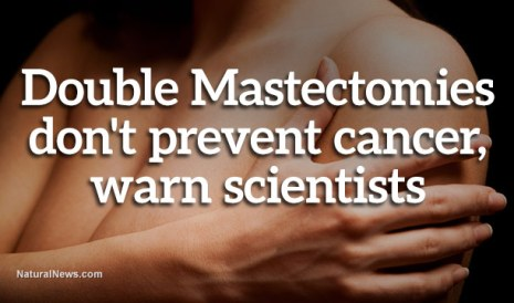Double-Mastectomies-Dont-Prevent-Cancer
