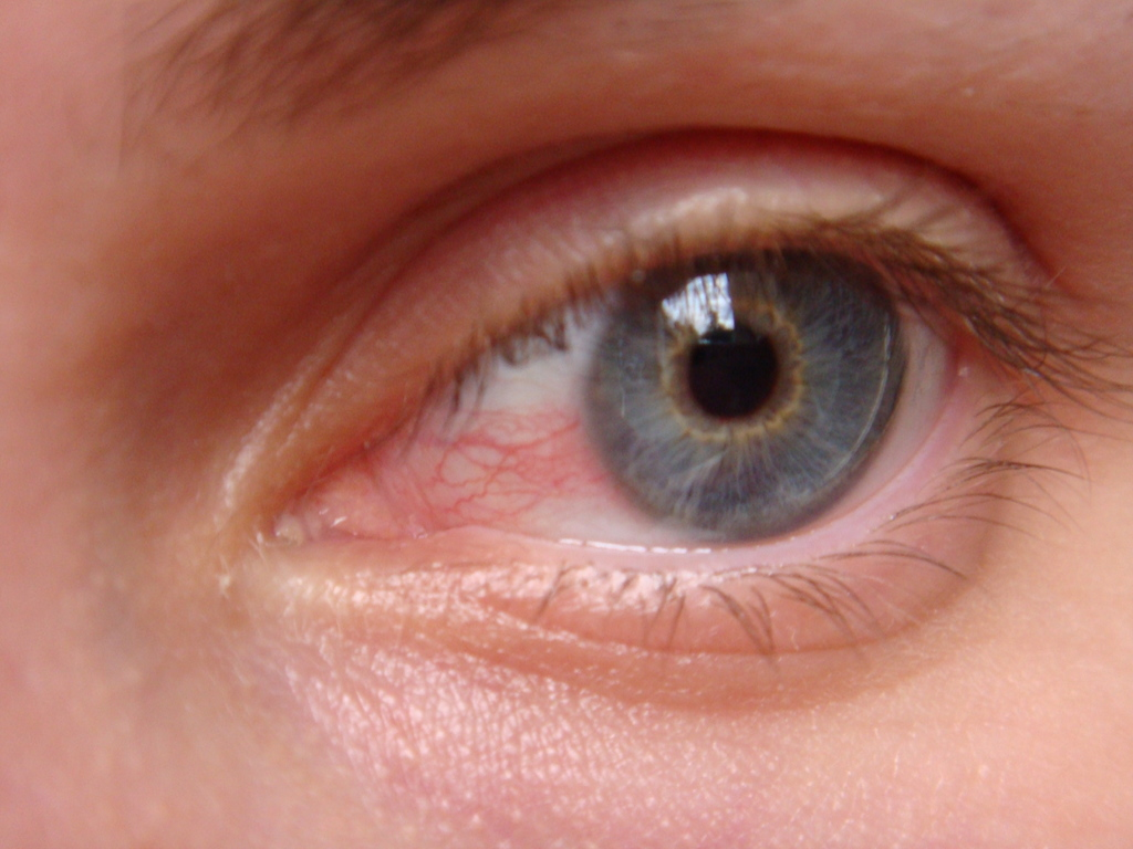 5 Reasons For Your Swollen Eyelid