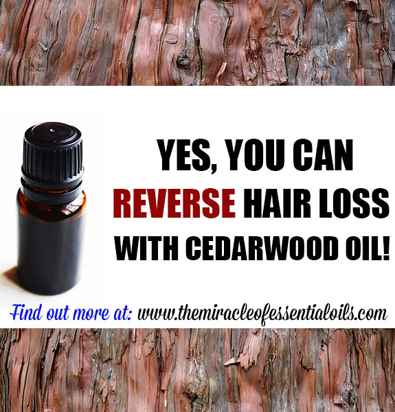 Cedarwood Essential Oil For Hair Loss How It Works