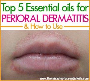 Top 5 Essential Oils for Perioral Dermatitis