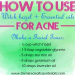 Witch Hazel and Essential Oils for Acne