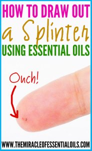 How to Draw Out a Splinter with Essential Oils